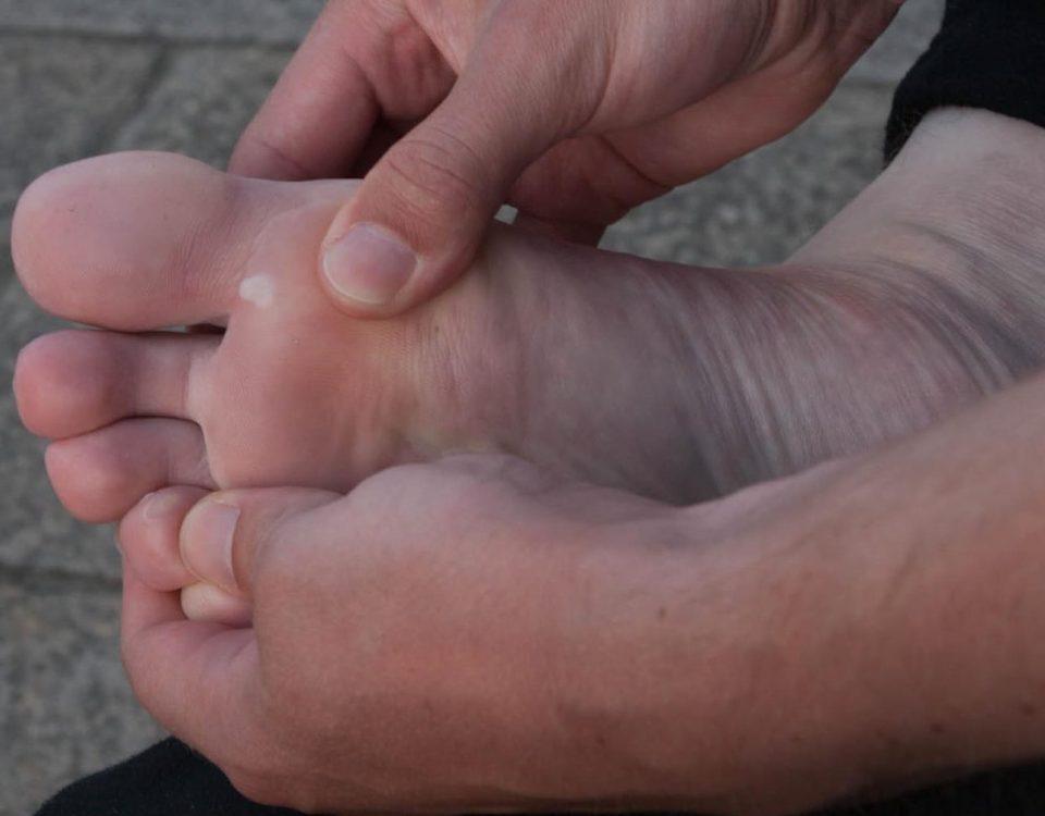 Foto eines Fußes. Zwischen der großen Zehe und der zweiten Zehe ist eine kleine Blase vorhanden.